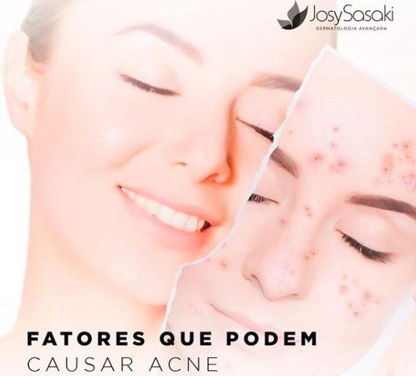 fatores que podem causar a acne
