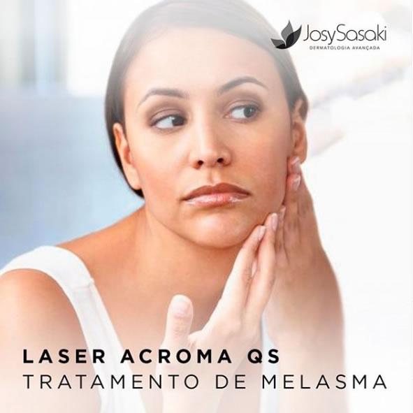 laser acroma tratamento de melasma em florianópolis