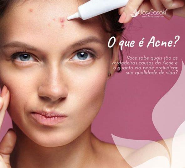 o que é acne espinhas