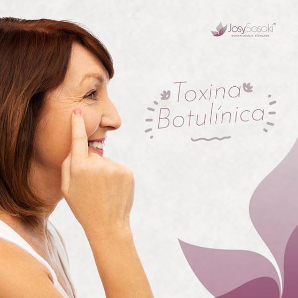 toxina botulinia em florianopolis botox