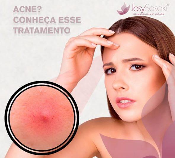 tratamento da acne em florianopolis